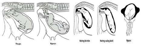 Yếu tố dẫn tới đẻ khó và biện pháp can thiệp bằng phẫu thuật trên bò cái sinh sản
