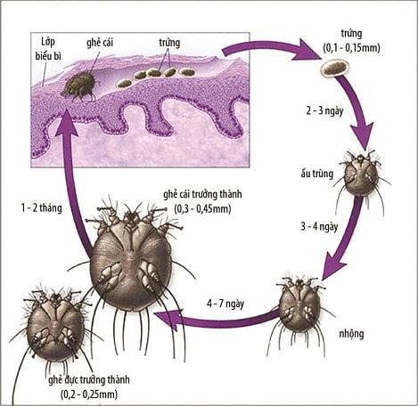 Cách phòng và trị bệnh ngoại kí sinh trùng ở heo